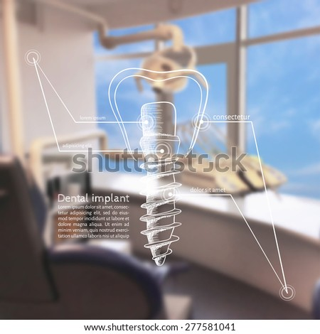 Vector illustration. Background - Blurred photo a dentist with a sketch infographics - dental implants - stock vector