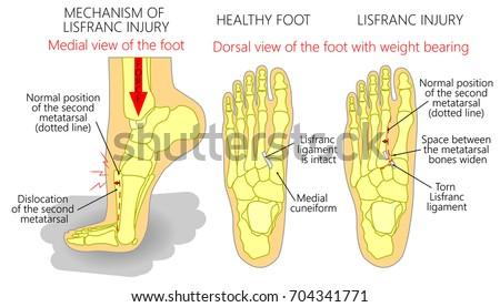 Vector Illustration Healthy Human Foot Foot Stock Vector Royalty