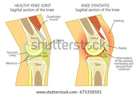 Diagram Of Knee Fluid Trusted Wiring Diagram