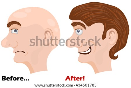 Vector illustration of before and after using a miracle lotion vector illustration - man head side face. - stock vector