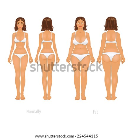 Vector illustration of different  body types, before and after plastic surgery. - stock vector