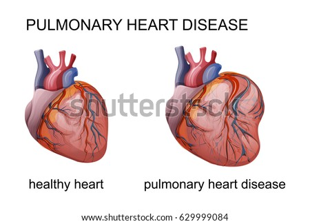 Vector illustration pulmonary heart disease cardiology stock vector vector illustration of pulmonary heart disease cardiology ccuart Image collections