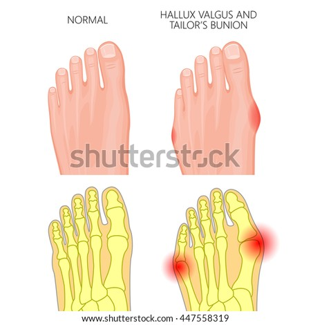 Valgus Stock Images, Royalty-Free Images & Vectors | Shutterstock