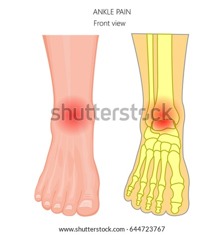 Vector Illustration Unhealthy Human Foot Ankle Stock Vector Royalty