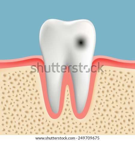 Vector image of a human tooth with caries - stock vector