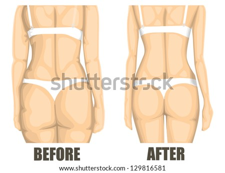 Woman body before and after diet - stock vector