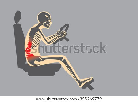 Wrong sitting position in driving make pain in back of driver. This illustration about Health care and lifestyle. - stock vector