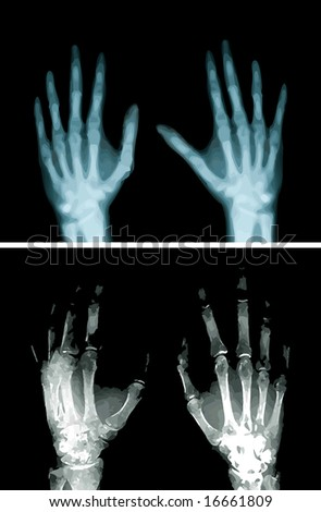 x-ray hands - stock vector
