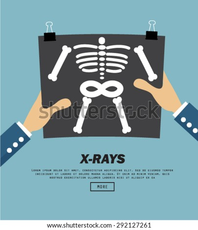 X-Rays, vector illustration - stock vector